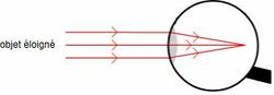 L'oeil myope au repos : un système trop convergent