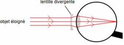 L'oeil myope au repos corrigé par une lentille divergente