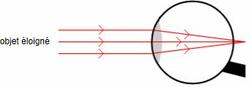 L'oeil hypermétrope au repos : un système pas assez convergent