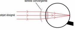 L'oeil hypermétrope au repos corrigé par une lentille convergente
