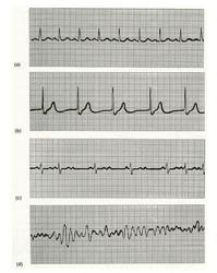 Exploration de l'appareil cardiovasculaire et pathologies - illustration 1