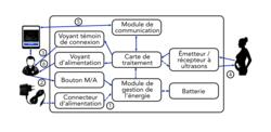 Principe de fonctionnement d'un échographe portable
