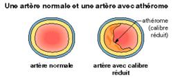 Les maladies cardio-vasculaires - illustration 1