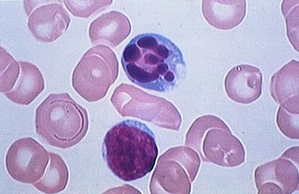 Frottis sanguin montrant un lymphocyte en apoptose - illustration 1
