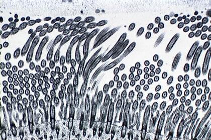 Cils recouvrant l'épithélium respiratoire - illustration 1
