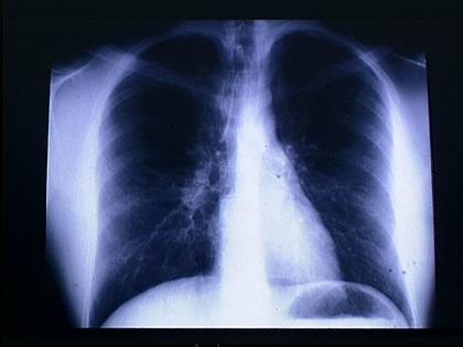 Radiographie du thorax - illustration 1