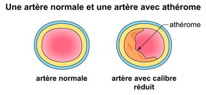 Une artère normale et une artère avec athérome - illustration 1