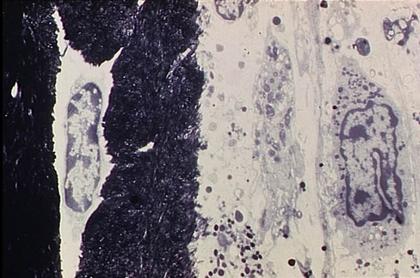 Une cellule spécialisée : l'ostéoblaste - illustration 1