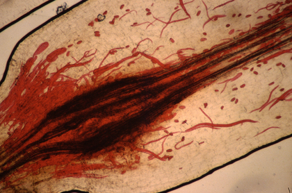 Le rôle des vers de terre dans la lutte contre le nématode parasite