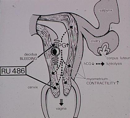 Action du RU 486 au début de la grossesse - illustration 1