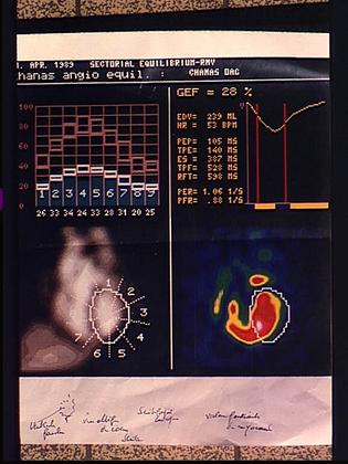 Scintigraphie cardiaque - illustration 1