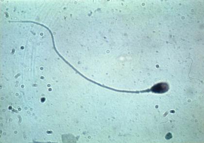 Spermatozoïde - illustration 1