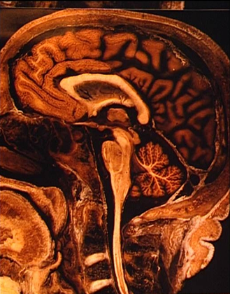 Coupe sagittale de l'encéphale - illustration 1