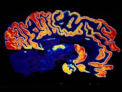 Récepteurs de l'acétylcholine dans le cerveau humain - illustration 1