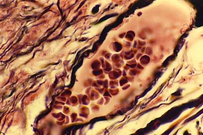 Globules rouges dans un capillaire sanguin (x 900)
