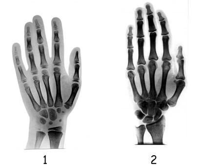 La croissance des os de la main - illustration 1