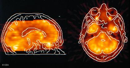 Images du cerveau réalisées grâce à des traceurs - illustration 1