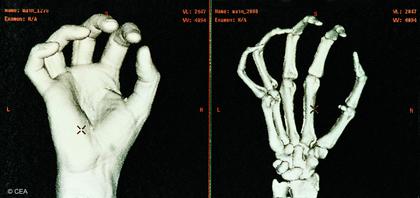 Visualisation d'une main à l'aide d'un morphomètre - illustration 1