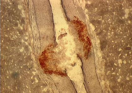 Dépôts lipidiques dans une artère