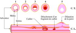 Pathologies de l'appareil cardiovasculaire - illustration 1
