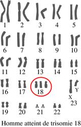 Le chromosome au cours du cycle cellulaire - illustration 6